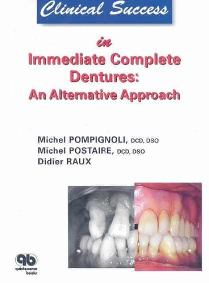 Books About Success - Clinical Success in Immediate Complete Dentures: An Alternative Approach