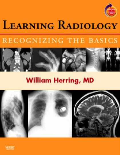 Books on Learning and Intelligence - Learning Radiology: Recognizing the Basics: With STUDENT CONSULT Online Access